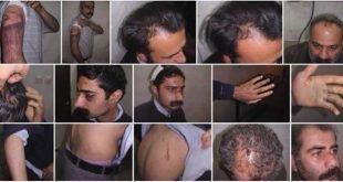 بازداشت ۳۰۰ تن از دراویش گنابادی در گلستان هفتم و بیرون کشیدن آنان از اتاق عمل