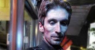 تأیید ابتلای زندانی سیاسی آرش صادقی به سرطان بدخیم استخوان